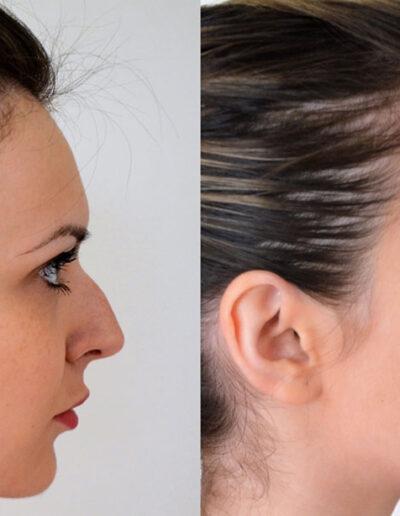 Korekcija nosa hijauronskim filerima – dr Maja Jevdjević