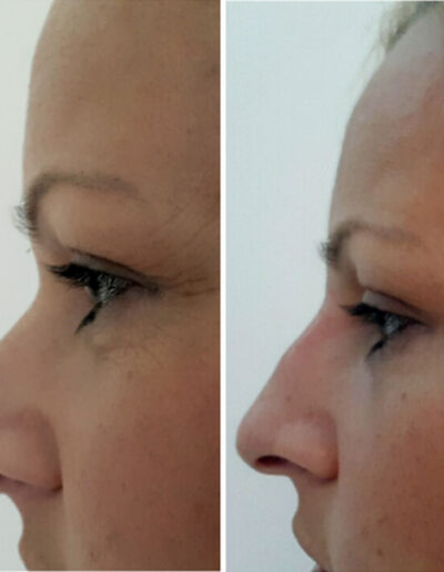 Korekcija nosa hijaluronskim filerima – dr Maja Jevdjević