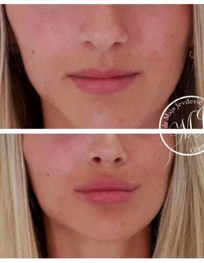 Uvećanje usana hijaluronskim filerima